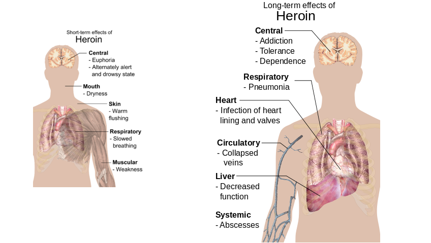 affects of heroin abuse