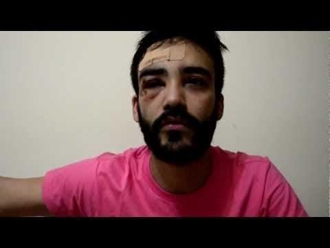 Homossexual agredido lança vídeo na internet