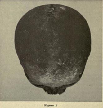 A brachycephalic Red Ocher skull, Wisconsin Archaeologist.