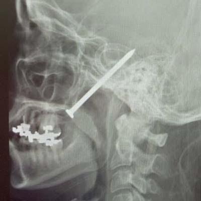 http://img2.timeinc.net/toh/i/g/0807_nailgun/nail-gun-mouth.jpg