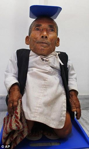 Nepal's Chandra Bahadur Dangi, 72, who says he's only 22 inches