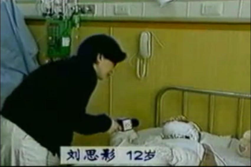 Đoạn phỏng vấn đăng tải trên CCTV về Liu Siying hát sau khi phẫu thuật mở khí quản 4 ngày. Nhân viên phỏng vấn không hề được trang bị cơ bản nhất khi tiếp cận người bị bỏng nặng.
