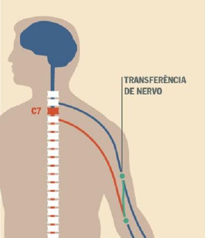 Imagem sobre a transferência de nervo