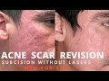 Get Rid Of Acne Scars? Here's How To Cure And Prevent Them Now Acne Scar Treatment