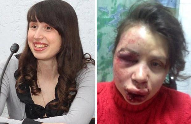 jornalista agredida ucrânia