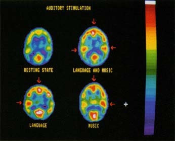 Positron emission tomography (PET) records electrical activity inside the brain. These PET scans show what happens inside the brain when it is resting and when it is stimulated by words and by music. The red areas indicate concentrations of brain activity. Notice how language and music appear to produce responses in opposite sides of the brain. Roger Ressmeyer/Corbis