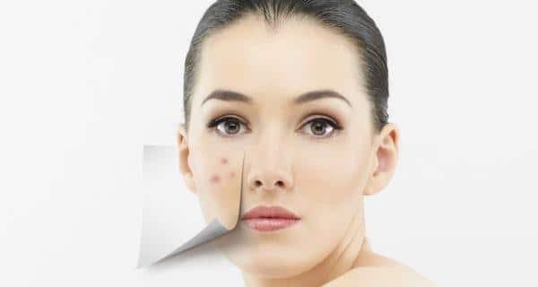 चेहरे से मिटेगा दाग- धब्बों के साथ बुढ़ापे का नामोनिशान बस अपनाएं ये घरेलू उपाय