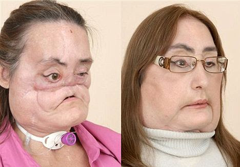 Culp in partial profile before and after she had 80 percent face transplanted. She has since had some extra skin removed