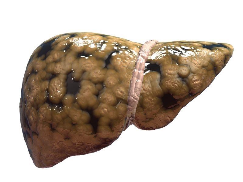 grasa en el hígado solo