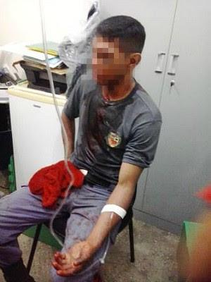 Policial teria sido agredido com facão e, por isso, disparou contra adolescente em Manaus (Foto: Divulgação/PM-AM)