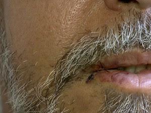Cantor levou pontos na boca (Foto: Reprodução/ TV Gazeta)