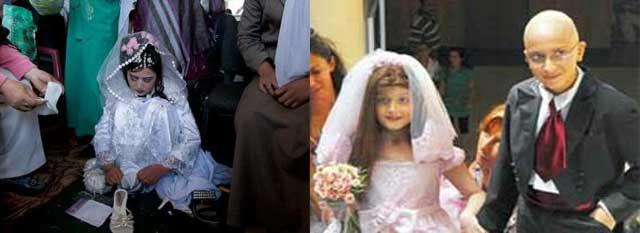 در بالا ازدواج دختر ۸ ساله با پسر ۱۲ ساله که هردو سرطان دارند، در لبنان دیده می شود. ازدواجی دردناک با خاطره ای تلخ و فراموش نکردنی. در پایین، ازدواج با کودکان یا عروسک بازی؟. کودکان نیاز به محبت، بازی کردن، آموزش و تفریح دارند و نه این که اسیر مرد گردن کلفتی شوند و به ناچار به ساز و هوس های او برقصند.