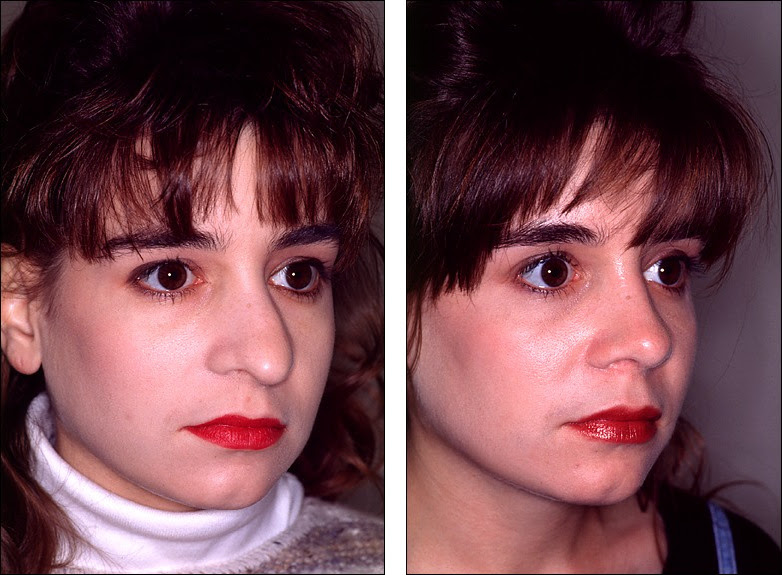 Dr Steven Denenbergs Facial Plastic Surgery Before And Afters