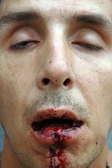 bloody lip17_3web