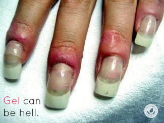 How to remove acrylic nails with non acetone nail polish remover solutioingenieria Images