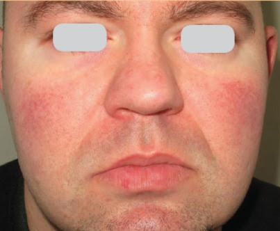 Rosacea What to do ?
