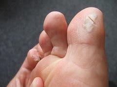 Company Trip blistered feet