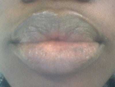 27 INFO CREAM FOR LIP DISCOLORATION WITH VIDEO TUTORIAL