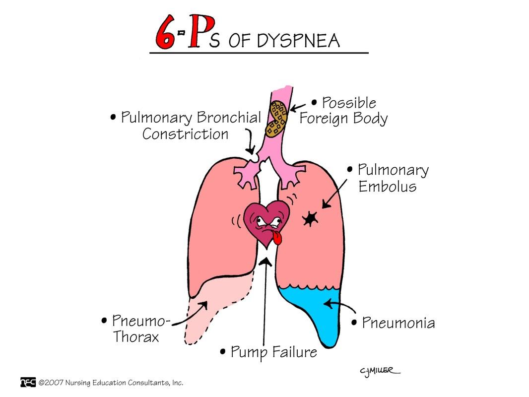 Diagnosis: Nursing Diagnosis For Shortness Of Breath