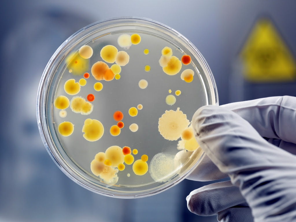 http://oneinabillionblog.files.wordpress.com/2013/05/bacteria-in-a-petri-dish-compressed.jpg