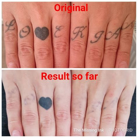 finger tattoos fade completely