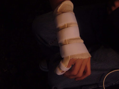 splint2