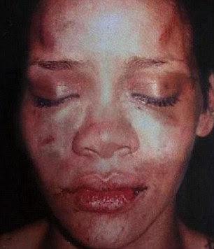 Photos : Singer Rihanna accused of been a bad role model to the youths .