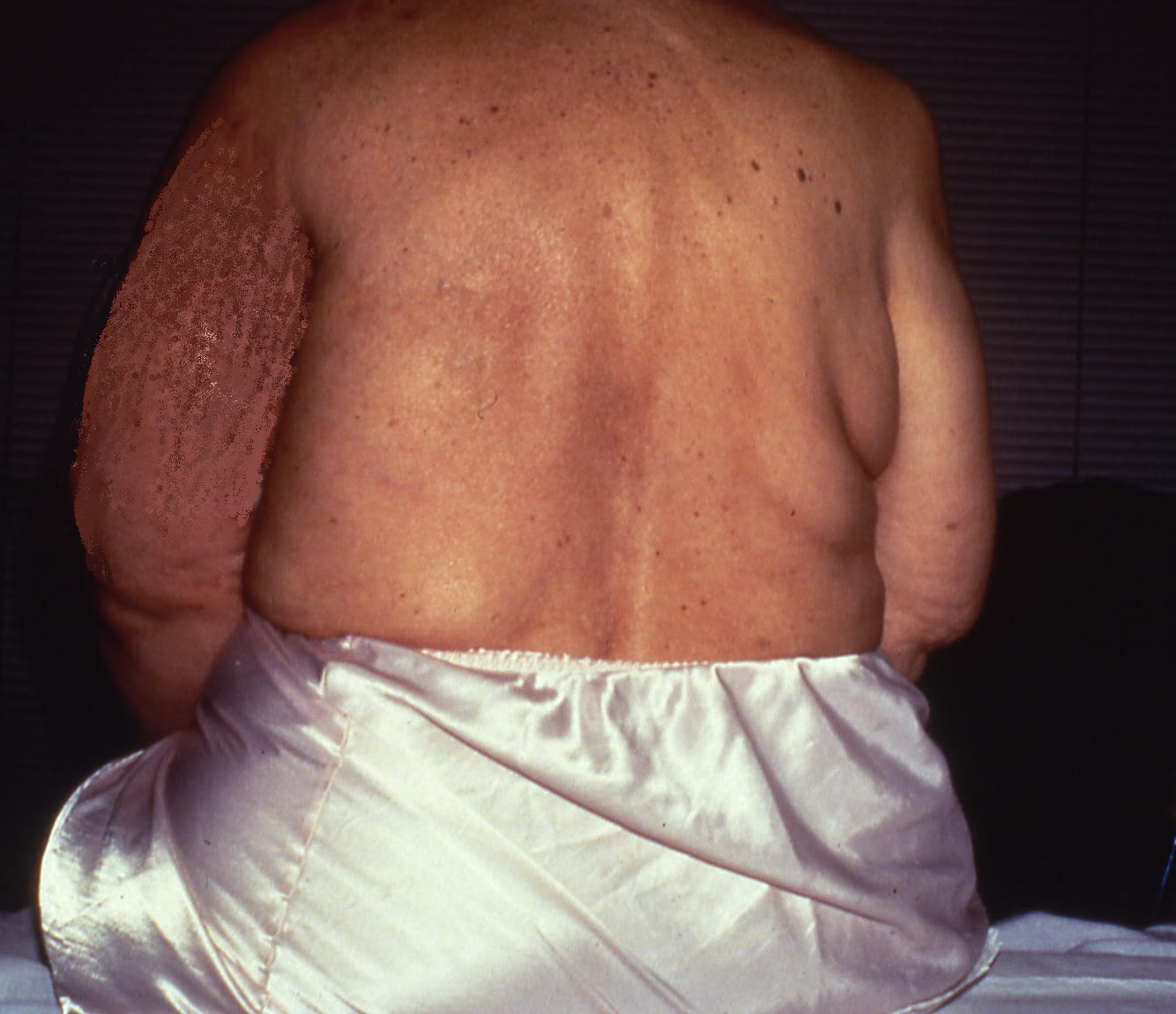 Lymphedema Affecting The Breast And Trunk Lymphedema Blog