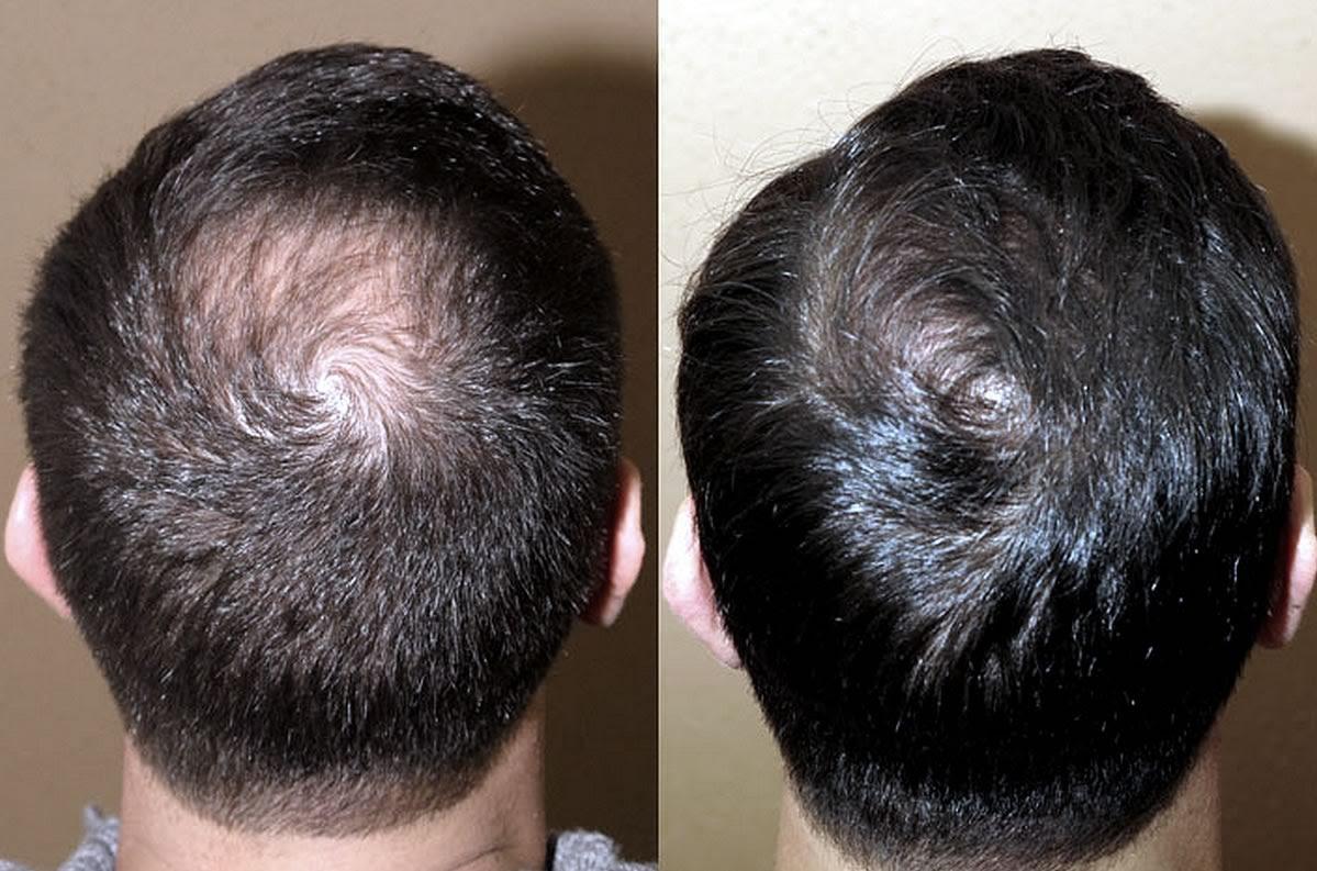 Ricrescita dei capelli in 6 mesi BioRicrescita it - ricrescita capelli cellule staminali
