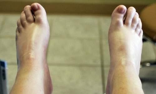 Rachaduras nos pés - parafina nos pés