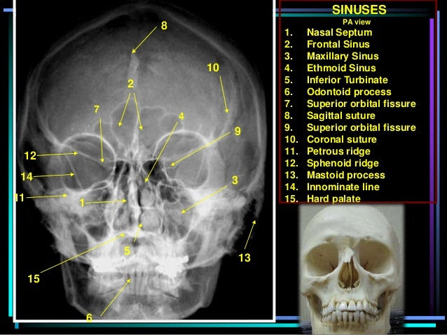 Sinus X Ray perspectives Skull X Ray Views Chart
