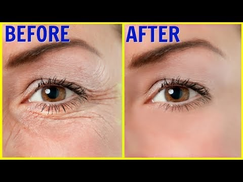 """Only 3 days, how to remove """"Wrinkles"""" 