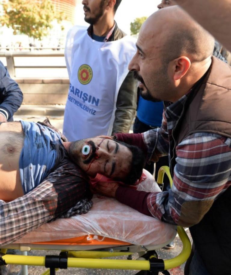 Атака террористов в Турции 4