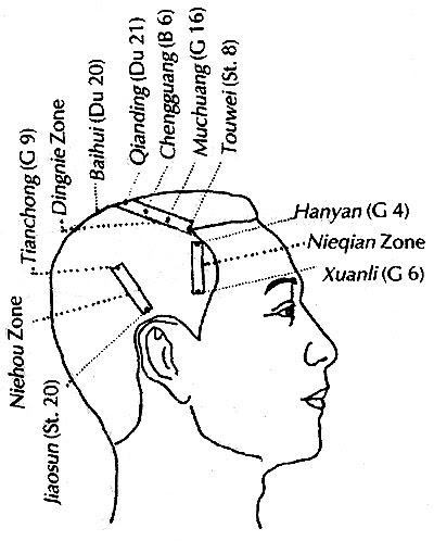 図:頭部鍼刺激