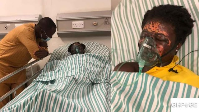 Man deforms wife with acid after throwing her out of their matrimonial home.