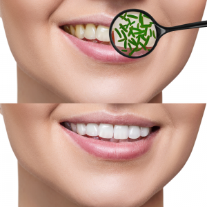Grow Back Your Receding Gums With The Help Of These Natural Remedies