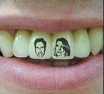 El Tatuaje De Dientes O Tateeth Debe Realizarlo Un Odontólogo
