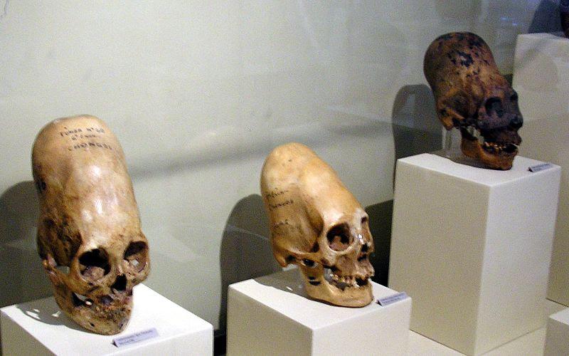 Cráneos deformados de la cultura Paraca (Perú)
