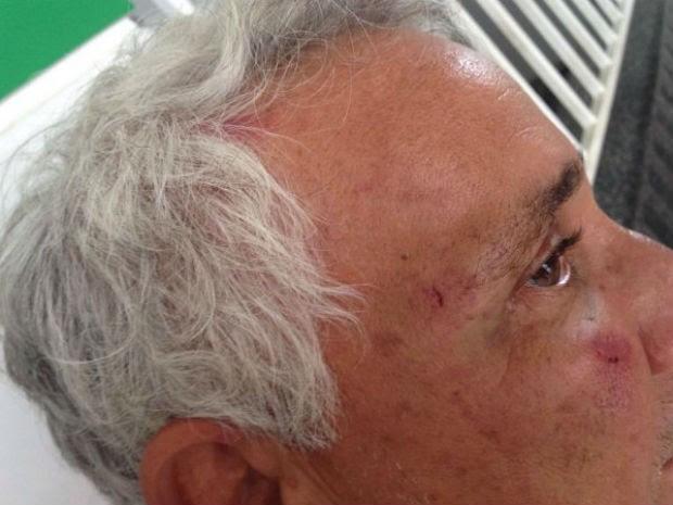 Idoso agredido por lutador de MMA, em Feira de Santana (Foto: Aldo Matos/Acorda Cidade)