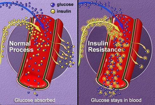 7 Methods to Reverse Type 2 Diabetes and Ditch the Insulin