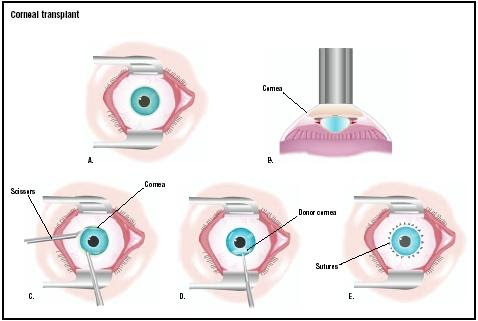 In a corneal transplant, the eye is held open with a speculum (A). A laser is used to make an initial cut in the existing cornea (B). The surgeon uses scissors to remove it (C), and a donor cornea is placed (D). It is stitched with very fine sutures (E). (Illustration by GGS Inc.)