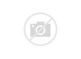 Acute Pain Related To Tissue Trauma