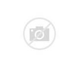 Knee Ligament Injury Photos