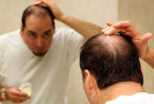 webmd_rf_photo_of_man_applying_minoxidil