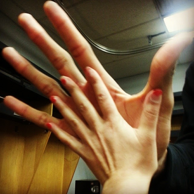> Giannis Antetokounmpo Hand Size:shocked: (pic) - Photo posted in BX SportsCenter | Sign in and leave a comment below!