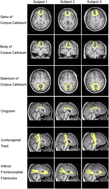 Six well-known major white matter tracts recon...