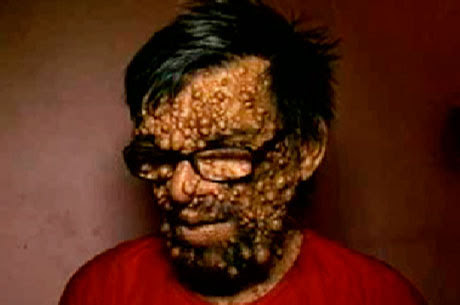 """Homem sofre com preconceitos por ter doença rara """"homem do caroço"""""""