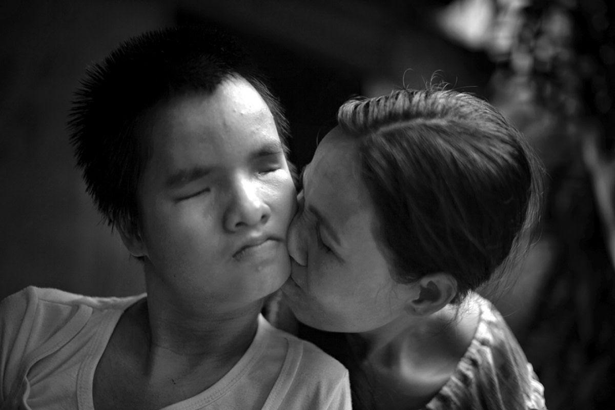 Estas 12 fotos mostram o legado devastador dos Estados Unidos no Vietnã