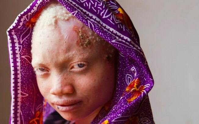 Angel Savatory, 17, é albina e contraiu câncer de pele por exposição imprópria ao sol; ela foi ataca pelo próprio pai