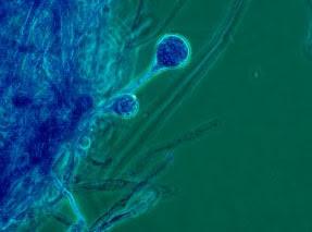 Microscopy of Apophysomyces